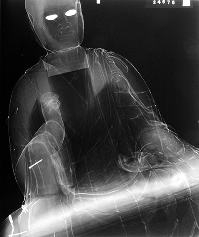 A film x-radiograph of the statue shows a projected shadow pattern of the x-ray attenuation of the materials used in the statue's construction
